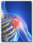 painful-shoulder-injuries